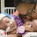 Faith & Hope Pull Through: <p>Conjoined Twins Separated at Texas Children's Hospital